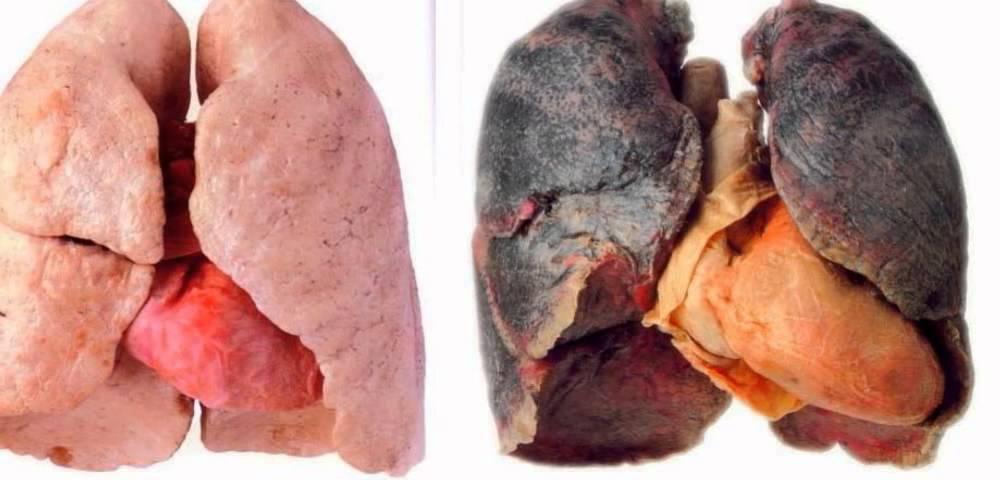 Nesmēķētāja un smēķētāja plaušas